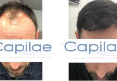 Clínica de implante capilar Ca...