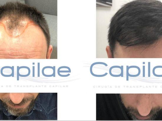 Clínica de implante capilar Capilae Madrid