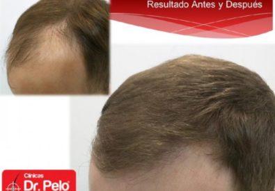 Clínicas Dr. Pelo Sevilla