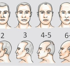 Clinic Center Hair Transplant ...