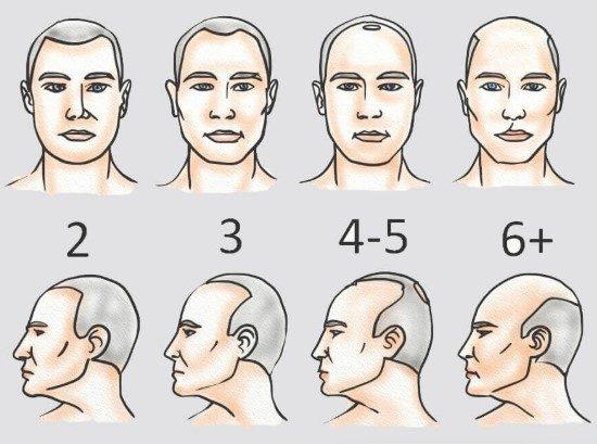 Clinic Center Hair Transplant Şişli