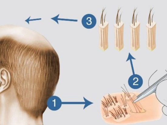 Clinic Center Hair Transplant Şişli