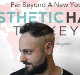 Esthetic Hair Turkey