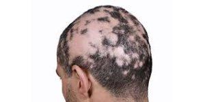 Paciente masculino con Alopecia Areata - caída del cabello