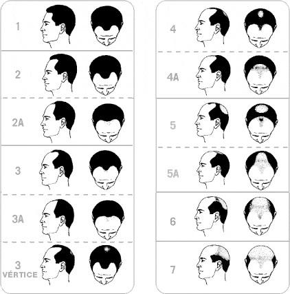 Escala Hamilton – Norwood para la clasificación de la Alopecia Androgénica masculina - caída del cabello
