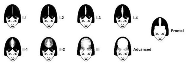 Escala Ludwig para la clasificación de la Alopecia Androgénica femenina - caída del cabello