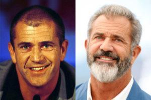 El antes y el después del implante capilar de Mel Gibson