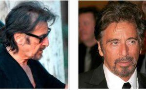 El antes y el después del implante capilar de Al Pacino