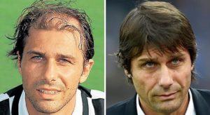 El antes y el después del implante capilar de Antonio Conte