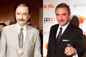 El antes y el después del implante capilar de Carlos Herrera