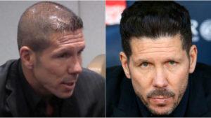 El antes y el después del implante capilar de Cholo Simeone