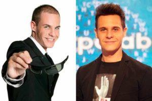 El antes y el después del implante capilar de Christian Gálvez