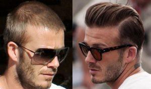El antes y el después del implante capilar de David Beckham