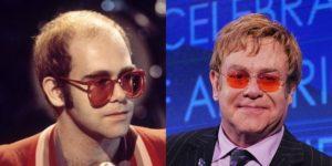 El antes y el después del implante capilar de Elton John