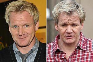 El antes y el después del implante capilar de Gordon Ramsay