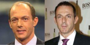 El antes y el después del implante capilar de Hilario Pino