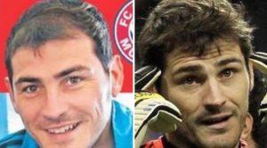 El antes y el después del implante capilar de Iker Casillas