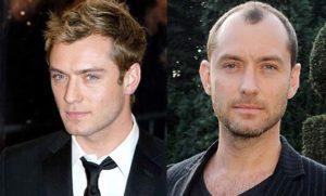 El antes y el después del implante capilar de Jude Law