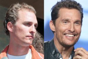El antes y el después del implante capilar de Matthew McConaughey