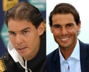 El antes y el después del implante capilar de Rafael Nadal