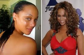 El antes y el después del implante capilar de Tyra Banks