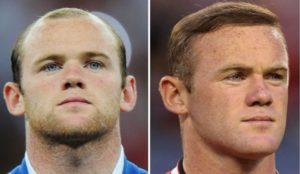 El antes y el después del implante capilar de Wayne Rooney