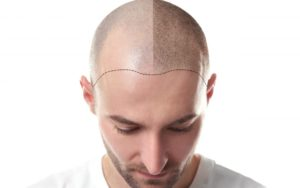 Micropigmentación caplar