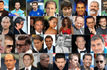 El antes y el después de los famosos con implante capilar