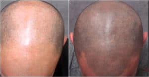 micropigmentación capilar área a tratar