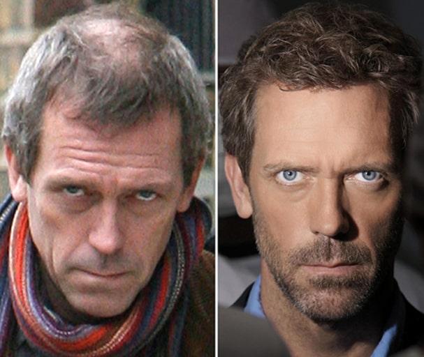 prótesis capilares famosos Hugh Laurie