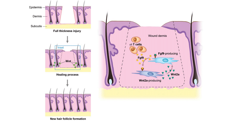 ¿Qué es la neogénesis folicular? ⋆ últimos avances en la regeneración capilar