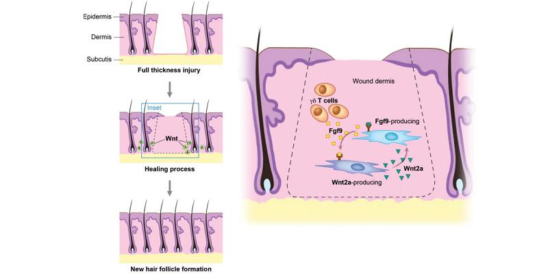 Qué es la neogénesis folicular - últimos avances en la regeneración capilar