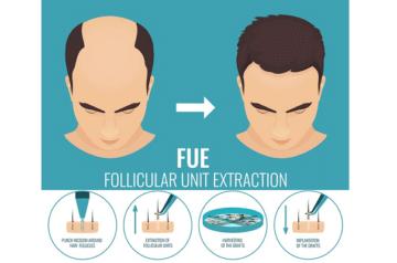 Técnica FUE de Extracción de Unidades Foliculares