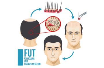 Técnica de Trasplante de Unidades foliculares FUT o FUSS