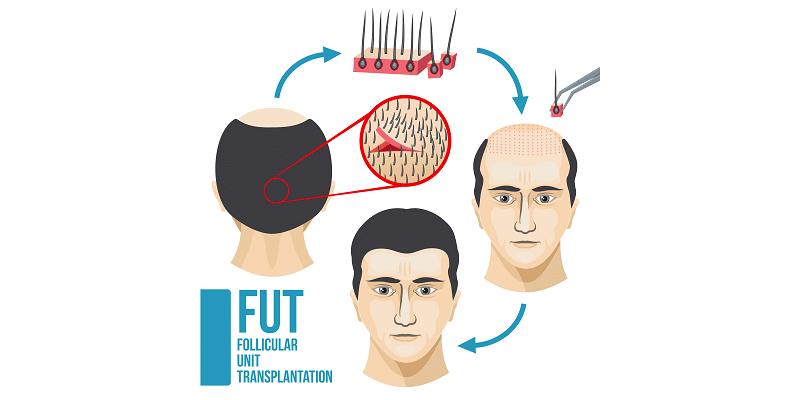 Técnica de Trasplante de Unidades foliculares FUT
