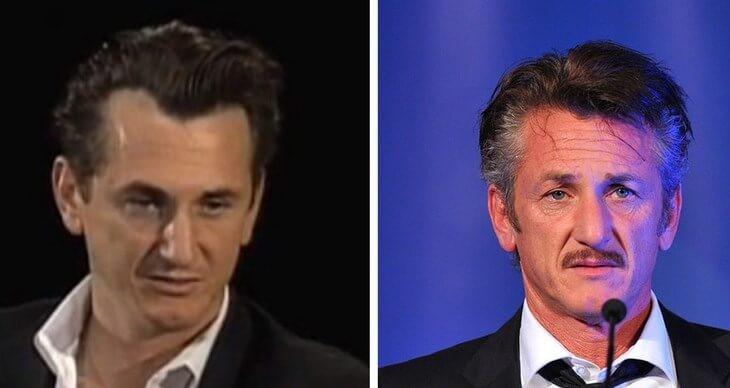 implante capilar Sean Penn