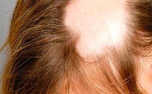Caída del cabello - alopecia cicatrizal