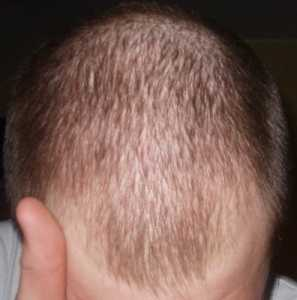 Caída del cabello - alopecia difusa