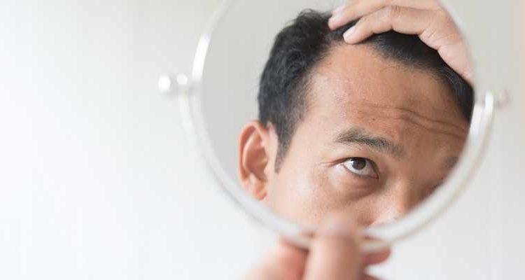 Caída del cabello ⋆ Los 7 tipos más comunes de alopecia