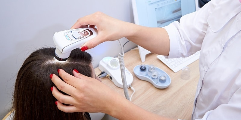 Tratamientos para la alopecia - 7 alternativas para tener en cuenta