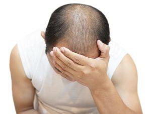 Técnicas de injerto capilar - caída del cabello