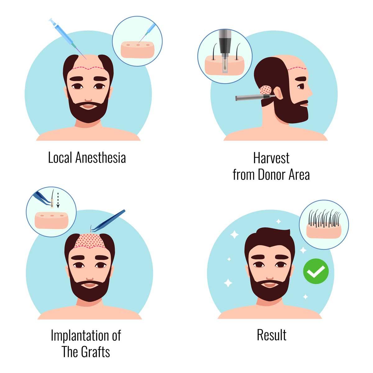 ¿Qué es un implante capilar?