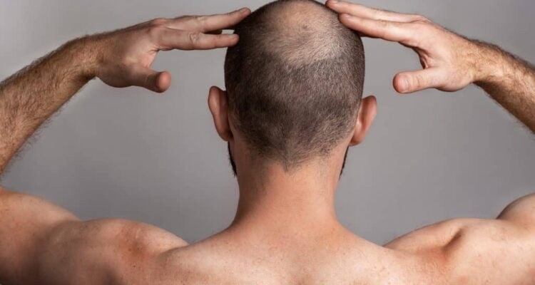Nanoxidil: una nueva alternativa para la caída del cabello